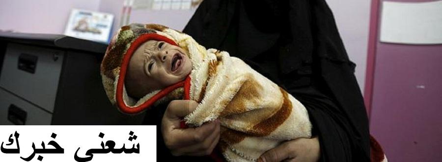 طفلة يمن.jpg